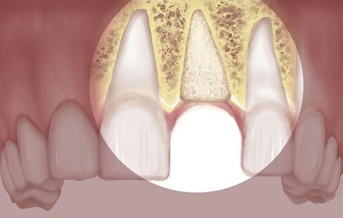 Bi quyết làm răng sứ thẩm mỹ chuẩn nhất trắng nhất