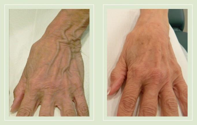 Điều trị suy giãn tĩnh mạch tay như thế nào để mang lại hiệu quả nhanh chóng